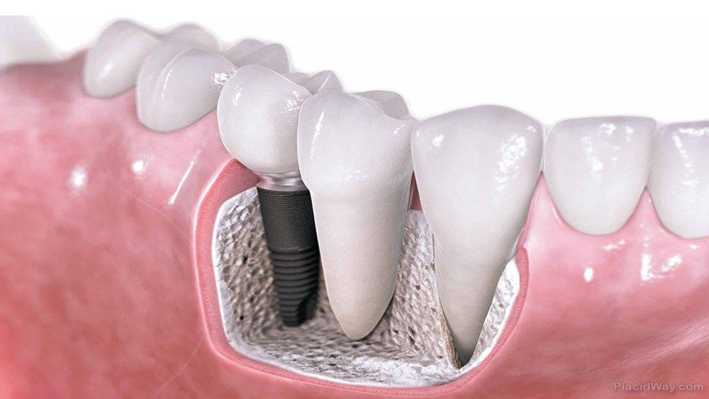 Dental Implants | Broadwater Dental D'Iberville, Mississippi