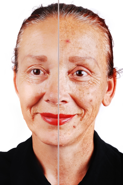Skin Spots & Hyperpigmentation