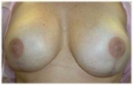 Bilateral Areola Creation   (Post-Mastectomy Reconstruction)