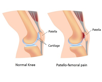 The red markings on the right image, indicate the location of pain for people with patellofemoral syndrome, caused by improper tracking of the patella