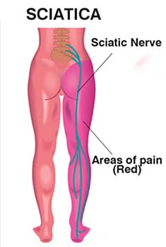 The sciatic nerve runs from the low back all the way to the foot. Pain from sciatia can occur in any of the purple regions