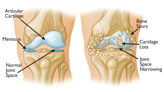 The image on the right is an example of severe knee osteoarthritis