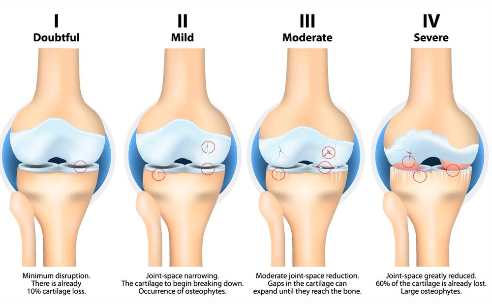 Knee Osteoarthritis from Mild to Severe