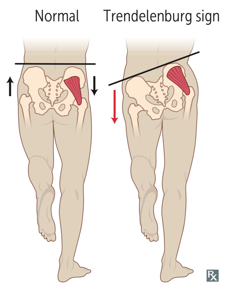 The trendelenburg sign, when the hips can not stay even during walking is a sign that the gluteus medius or minimus are weak