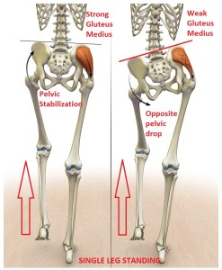 A weak gluteus medius will cause the pelvis to drop on the opposite side, placing more stress on the knee