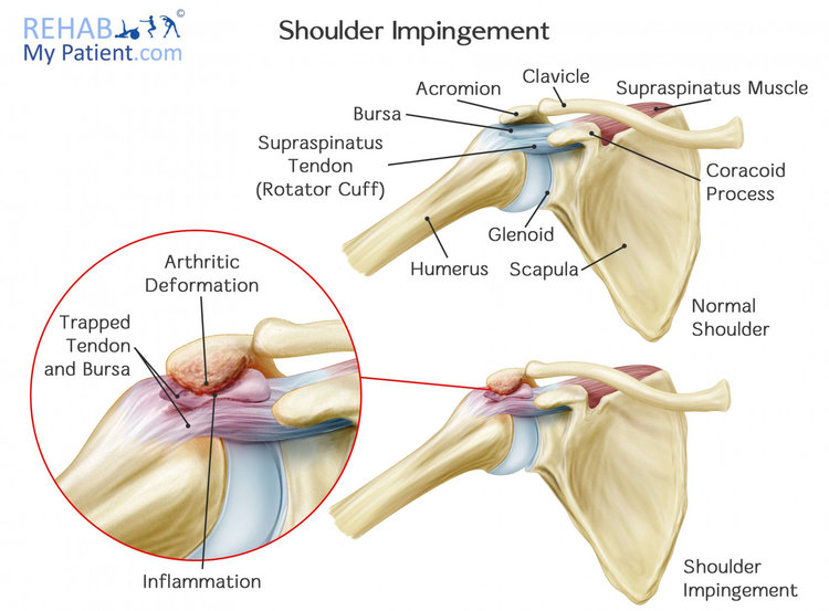 Westcoast Sci What Is A Shoulder Impingement
