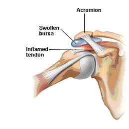 In this image, the tendons and bursa in the subacromial space are irritated causing shoulder impingement.
