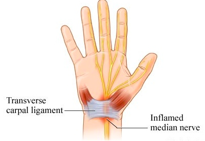 The carpal ligament makes up the carpal tunnel in which the median nerve runs through