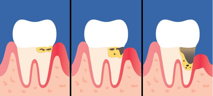 Lätt parodontit