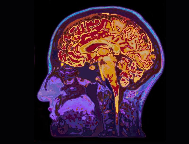 """Into the brain mechanics."""