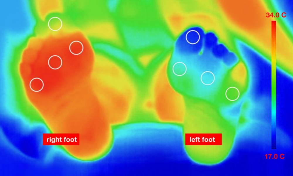 bonbouton_foot-temperature.png