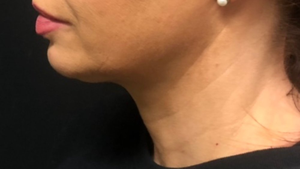 AFTER: NECK *only 6 weeks after one treatment
