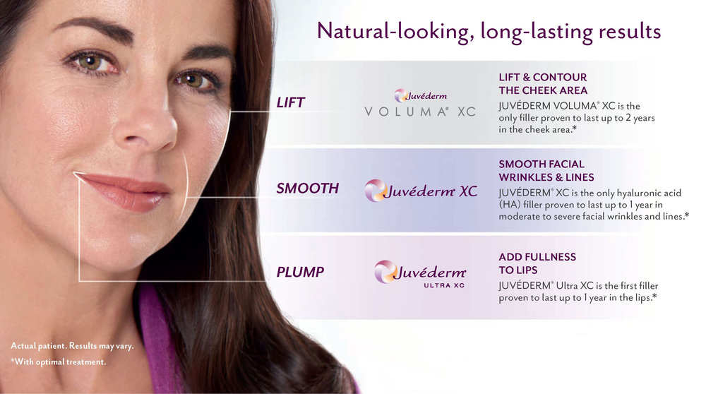 juvederm-treatment-areas.jpg