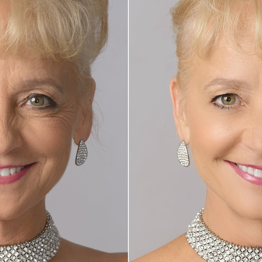 Kelly Tomblin Before & After.jpg