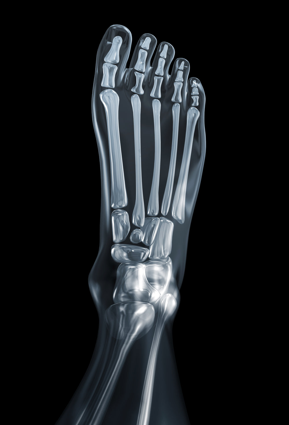 foot fracture broken ankle doctor essexville linwood podiatrist  t