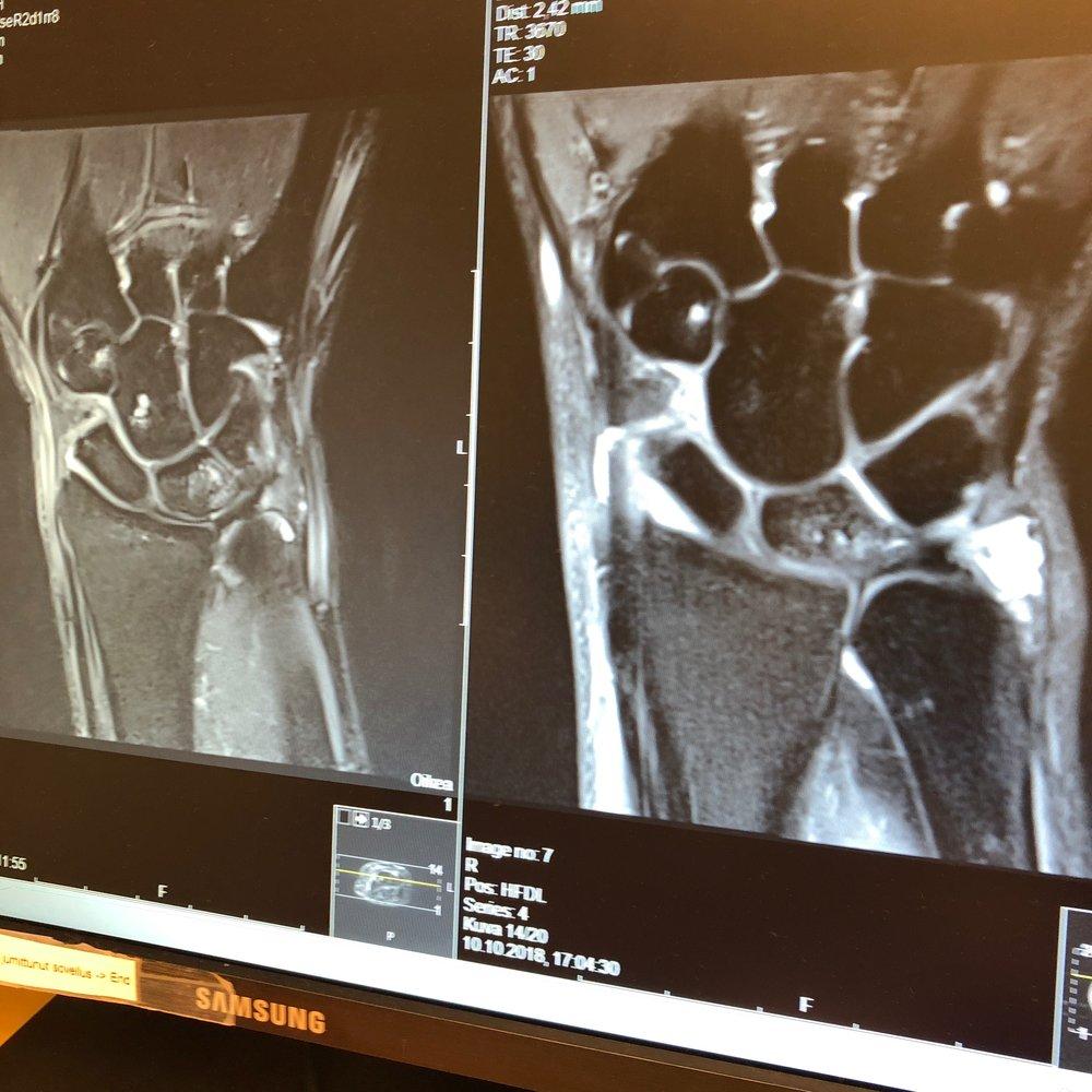 MRI of my wrist