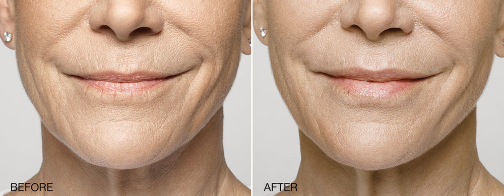 BEFORE RESTYLANE , Naples Florida AFTER 1 syringe of RESTYLANE SILK (LIPS ONLY) Naples, Fl   Similar results with Juvederm Fillers