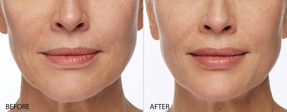 Before Restylane Dermal Filler, Naples FL After Restylane Dermal Filler ( Lips only) Naples, FL