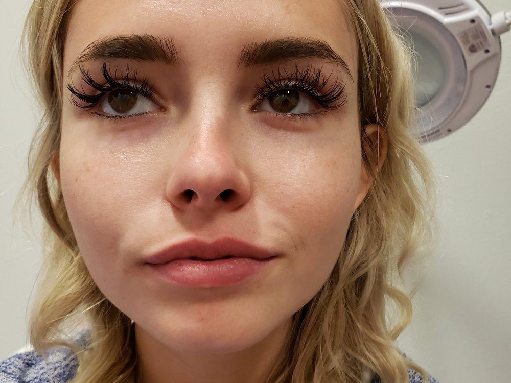 Lips-Juvederm Vobella -