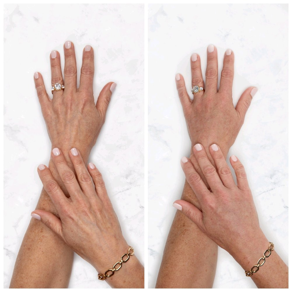 Before Hand Rejuvenation Naples, FL After Hand Rejuvenation Naples, FL