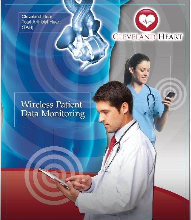 Total Artificial Heart (TAH)