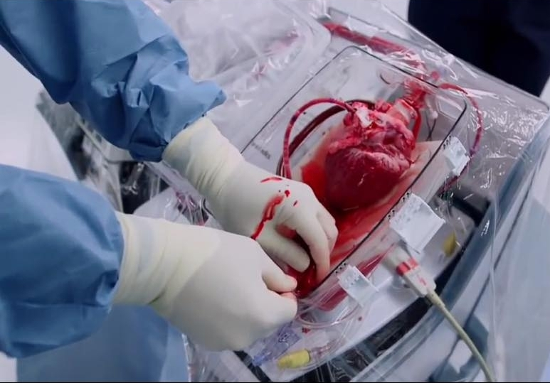 Transplant heart