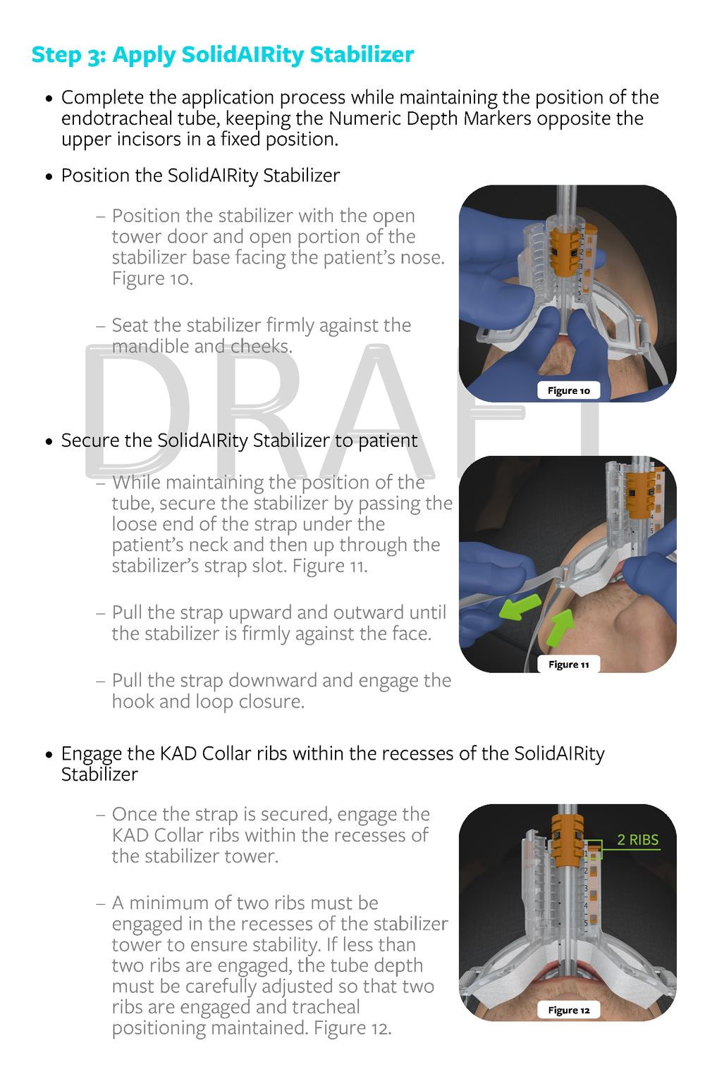 3.4040 Rev X1_Instructions for Use_SolidAIRity Airway Stabilization System_FINAL DRAFT 10.13.2017_Page_09.png