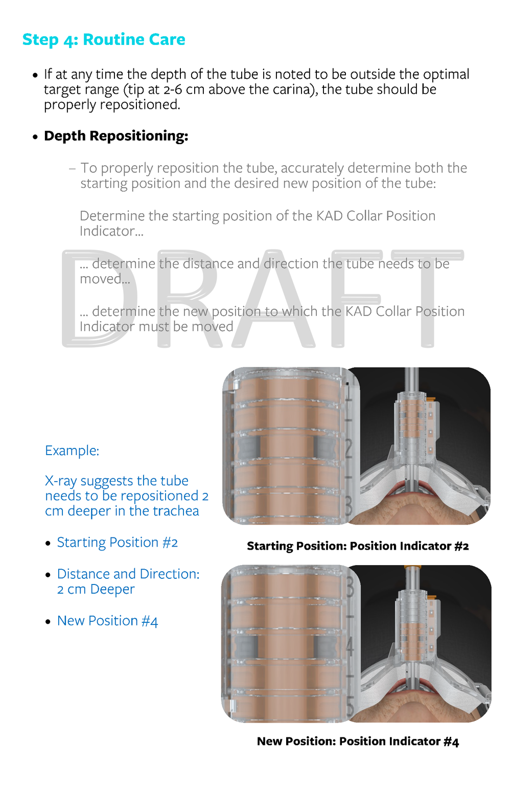 3.4040 Rev X1_Instructions for Use_SolidAIRity Airway Stabilization System_FINAL DRAFT 10.13.2017_Page_12.png