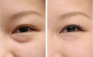 Before and after non-surgical eyebag removal #minimalinvasivesurgery #kinlyeyebeauty #sydney #Beauty #comestic #beforeafter #finishedwork #eyebags #eyebagremoval