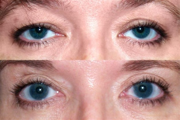 Eyebrow lifting before treatment and after treatment.