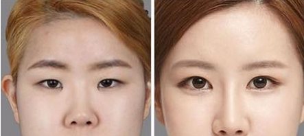 Double eyelid treatment before and after