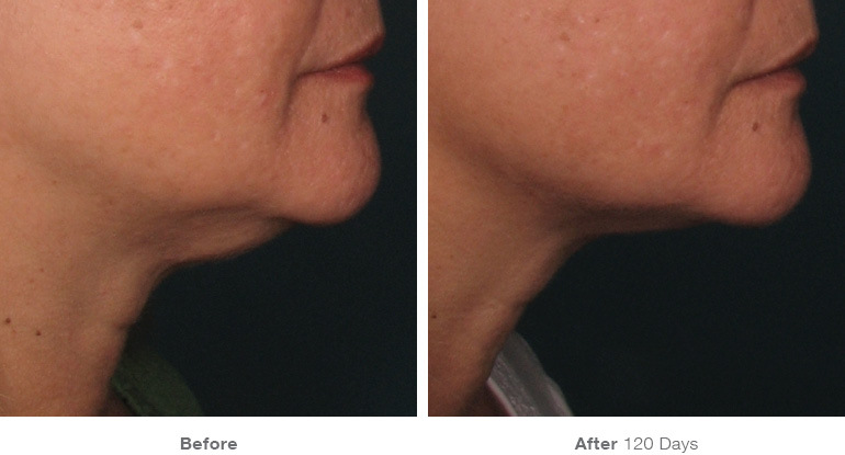 before_after_ultherapy_results_under-chin11.jpg
