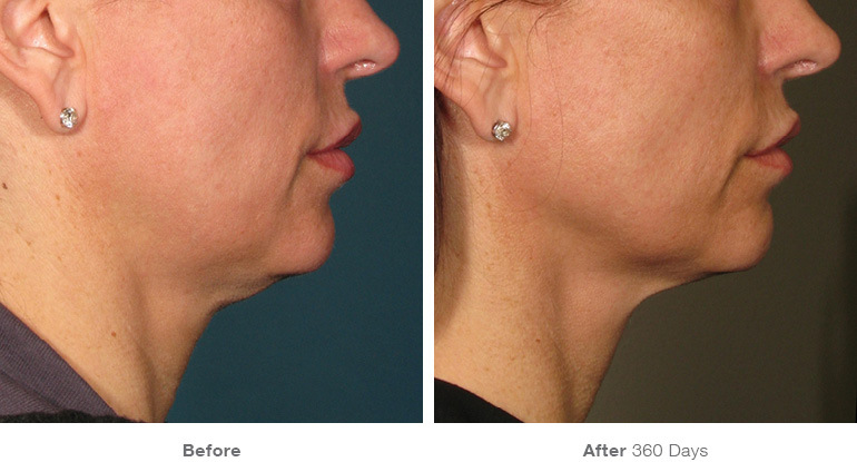 before_after_ultherapy_results_under-chin4.jpg