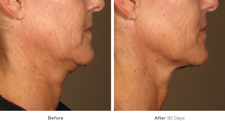 before_after_ultherapy_results_under-chin8.jpg