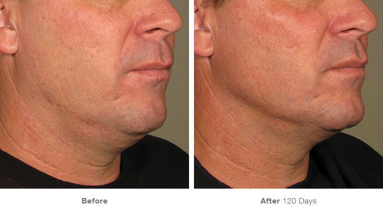 before_after_ultherapy_results_under-chin12.jpg