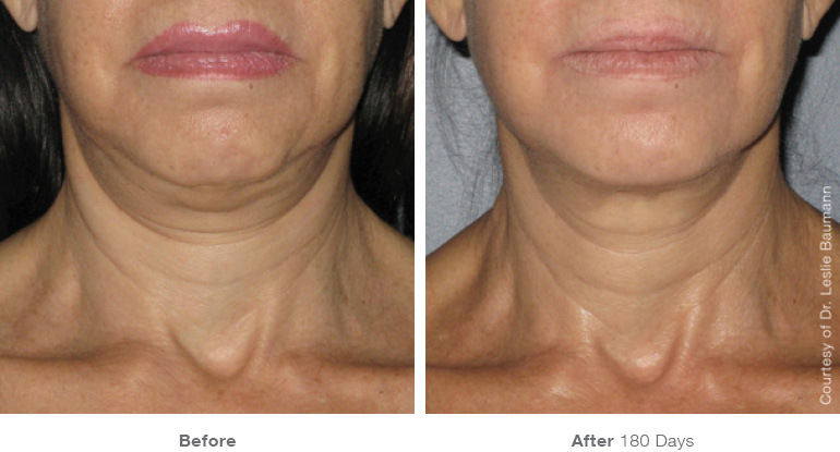ultherapy-0008-0086w_180day_1tx_neck1_gallery.jpg