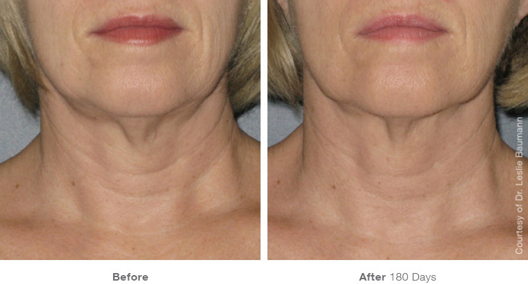 ultherapy-0025-0086w_180day_1tx_neck_gallery.jpg