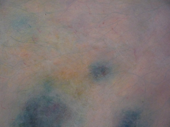 """Bruises, 5"""" x 7"""", mixed media on paper, 1997"""