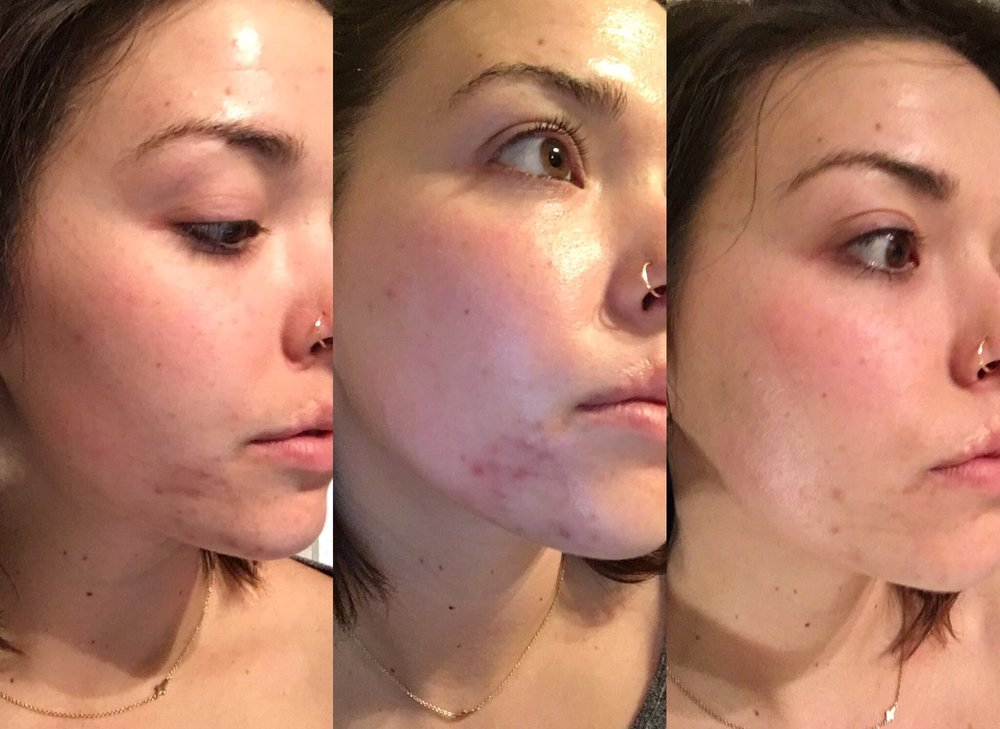 This is the change in my skin after the first month of using Cocokind