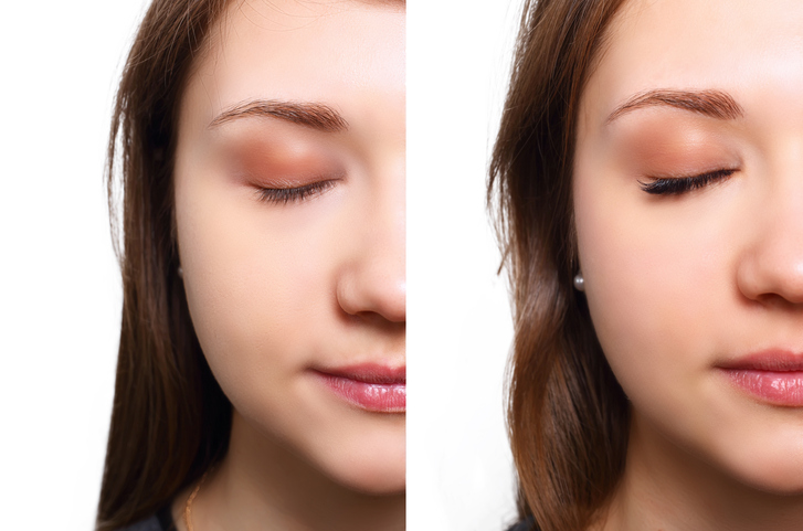 Eyelash-Extension.-Comparison-of-female-eyes-before-and-after-648878722_730x483.jpeg
