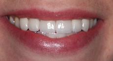 kveneersaftteeth.jpg