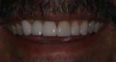 after_teeth-1.jpg