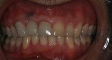 before_teeth-1.jpg