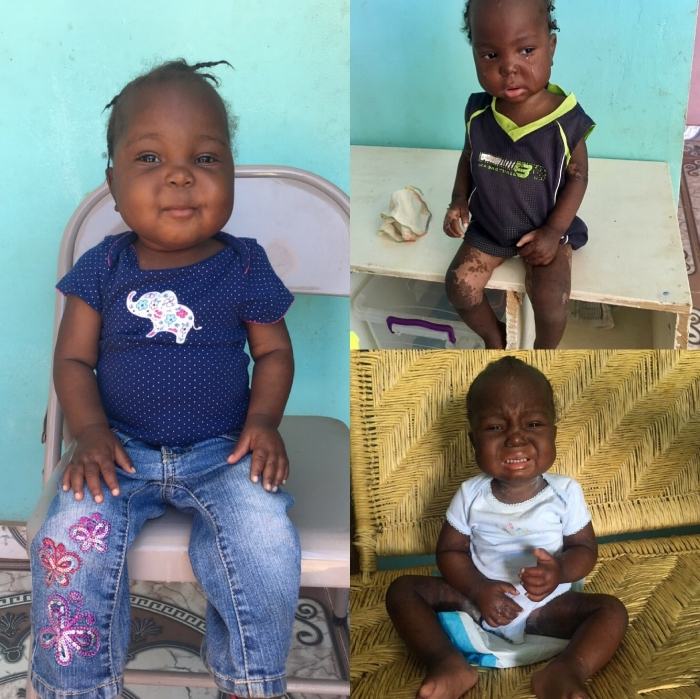 Asline's road to recovery was long and difficult, but we are so thankful for the chubby cheeked little girl we see today. She has come so far during her time at Potter & Clay.