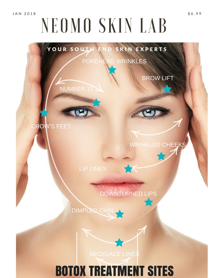 Learn more about Botox and how it works by reading Botox Basics below.  Note: Dosing and cost is determined at your INTAKE VISIT with one of our SKIN SPECIALISTS.