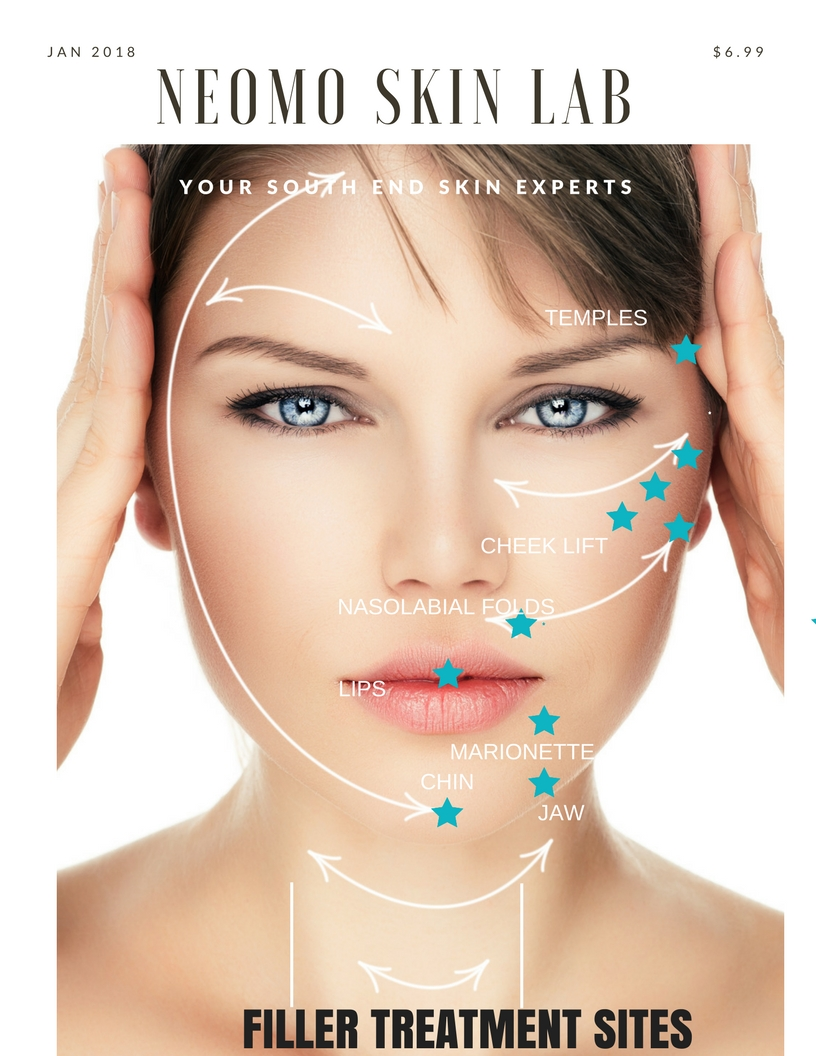 The quantity and type of filler required is determined by patient characteristics- age, degree of deflation and previous treatments.  Book an appointment with one of SKIN SPECIALISTS today to book your appointment to see how fillers can improve your facial volume.