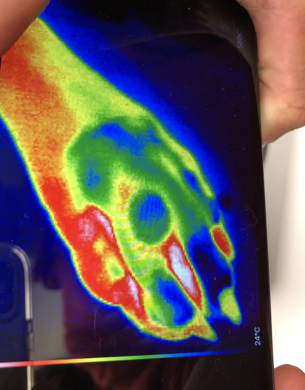 Nanoparticles treatment.jpg