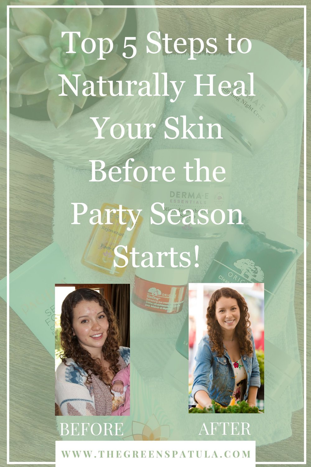Heal your skin naturally with these 5 tips. There are several factors that influence our skin's health like what we eat, our exercise routine, and how we process emotions like stress). Once I learned this, it was way easier to treat my acne since I knew what I should/shouldn't do. Learn my top 5 tips to clear your skin before the holiday and party season begin! #clearskin #vegan #plantbased #acne #adultacne #hormons #balancedhormones