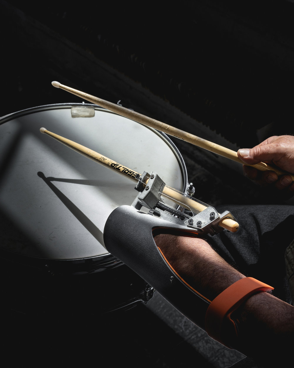 PARADIDDLE Drumming Prosthesis Collaborated with renowned amputee drummer Greg Anton