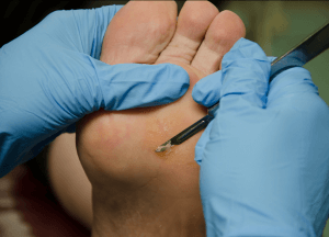 Picture of Podiatrist Removing Corns and Calluses Pittsburgh Pa